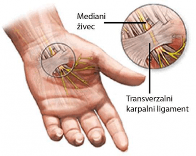 sindrom karpalnega kanala, operacija karpalnega kanala