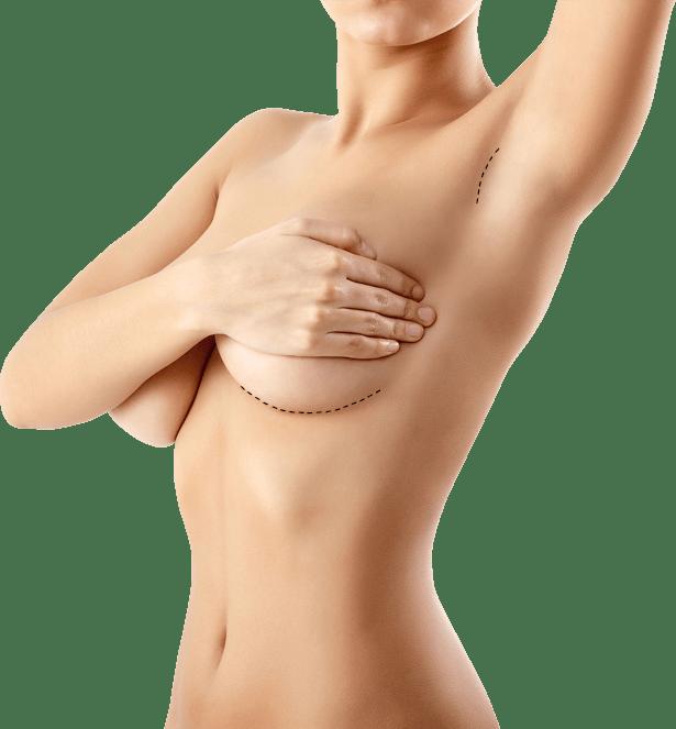 povečanje prsi, ženske prsi, umetne prsi, povečanje dojk