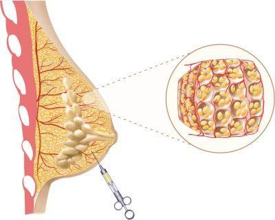 povečanje prsi z lastno maščobo