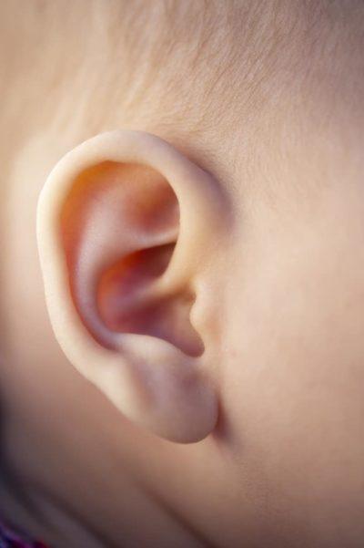 korekcija štrlečih ušes, otoplastika, štrleča ušesa