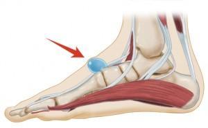 ganglion na nogi