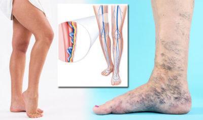 krčne žile, zatekanje nog, otekanje nog, otekle noge, varice