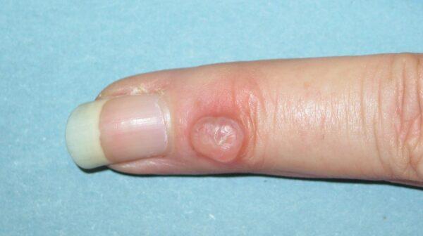 ganglion na prstu