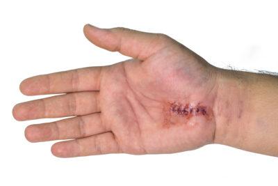 Zašita rana po sprostitvi karpalnega kanala, zaradi sindroma karpalnega kanala