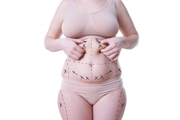 liposukcija trebuha, pasu, bokov, cena
