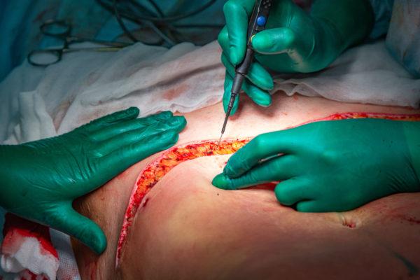 abdominoplastika, operacija, kirurška korekcija trebuha