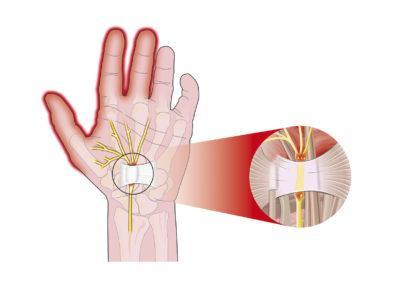 Shematsko prikazan karpalni kanal, utesnjen mediani živec in sindrom karpalnega kanala