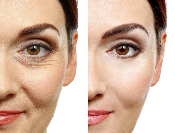 ženski obrat pred in po aplikaciji botoxa, botulin toksina