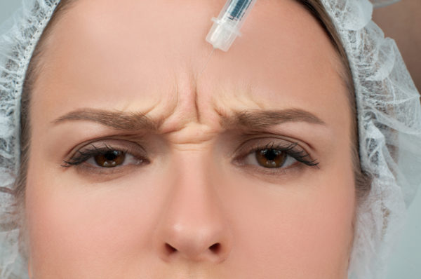 mladi ženski se vbrizga botox v predel med obrvmi - glabela