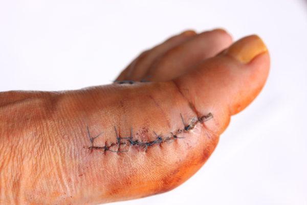 zašita kožna rana po operaciji hallux valgus, haluks valgus