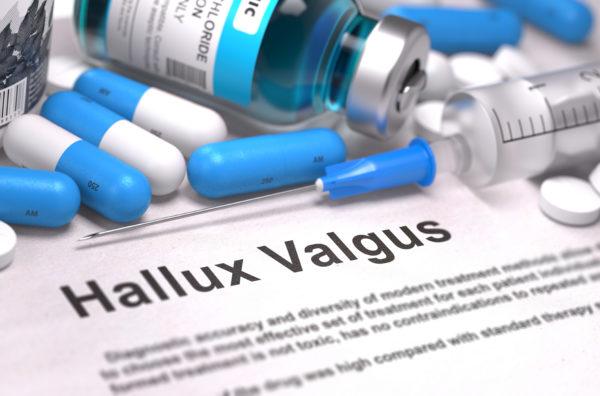 zdravila proti bolečinam po operaciji hallux valgus