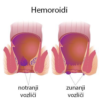 hemoroidi, shematski anatomski prikaz