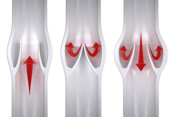 okvarjene venske zaklopke, vzrok za krčne žile
