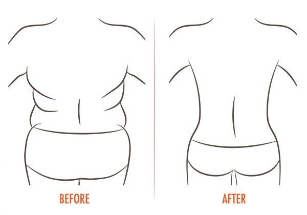 preoblikovanje telesa po masivnem hujšanju, skica prej in potem