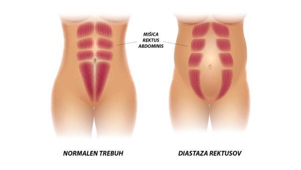 abdominoplastika, diastaza rektusov