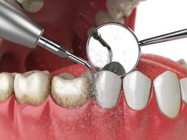 zobni kamen, čiščenje zobnega kamna, odstranjevanje zobnega kamna, zobozdravnik