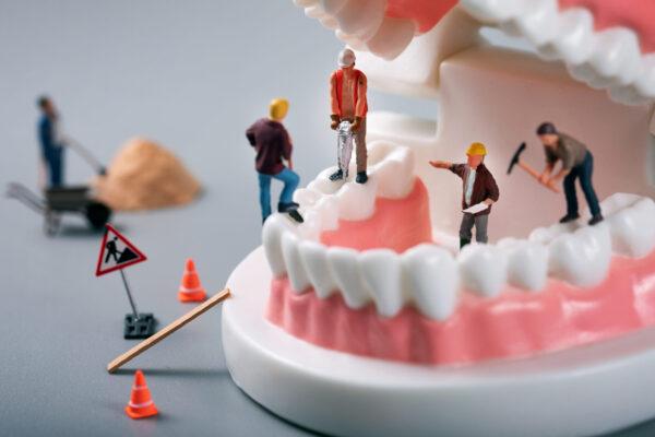 popravilo zob, čiščenje zobnega kamna, zobni kamen, zobozdravnik