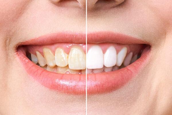 zobni kamen, odstranjevanje zobnega kamna, čiščenje zobnega kamna, prej in potem