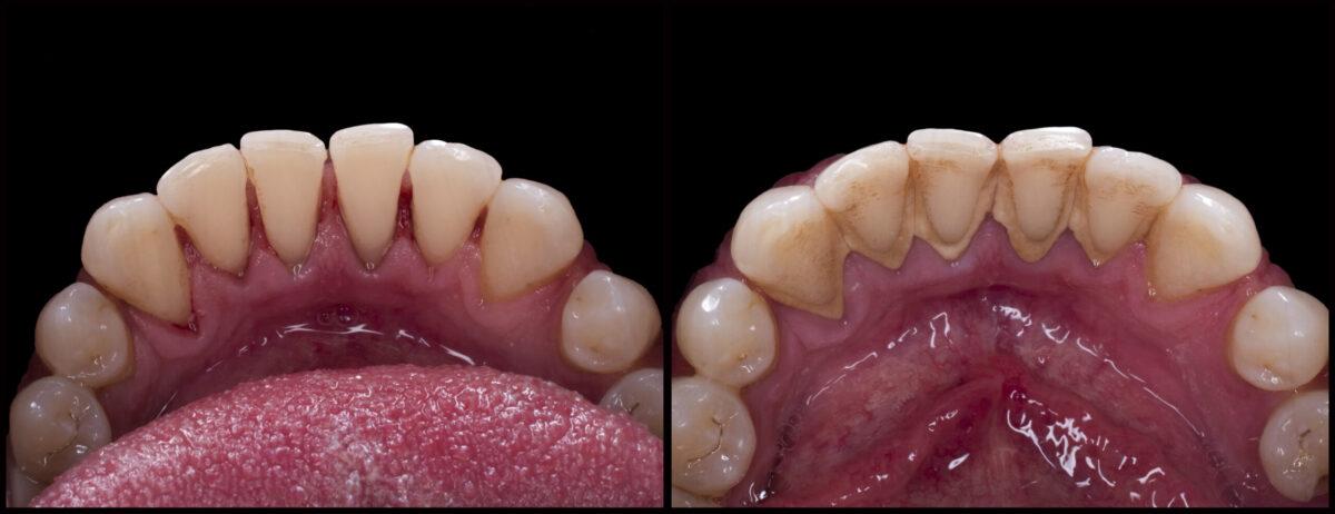 zobni kamen, čiščenje zobnega kamna, odstranjevanje zobnega kamna, prej in potem