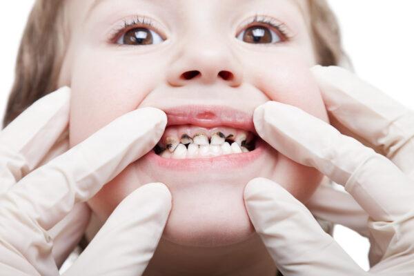 zobni karies pri otroku, zobna gniloba, gnili zobje, zobozdravnik