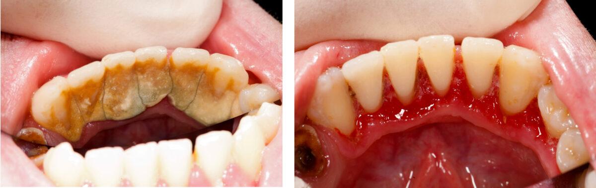 zobni kamen, čiščenje zobnega kamna, odstranjevanje zobnega kamna