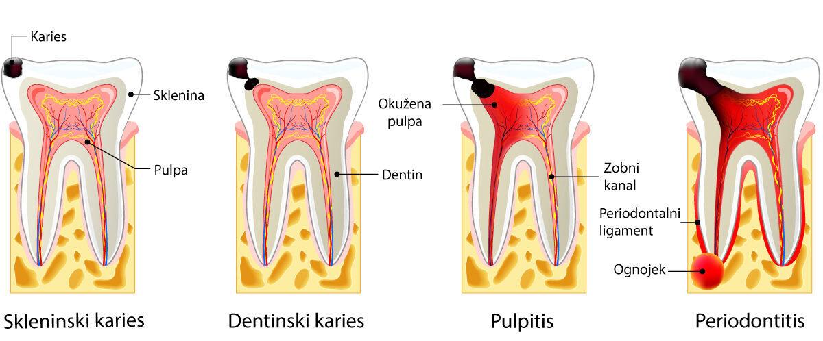 zobni karies, zobna gniloba, gnili zobje